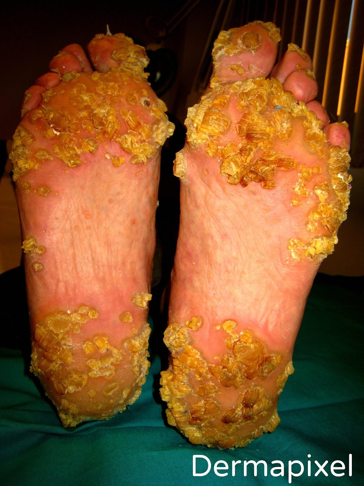 Cum on feet who is she please id - 2 1