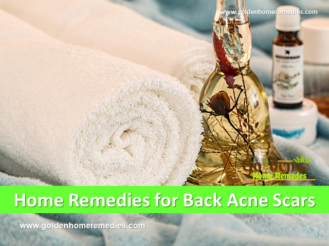 how to get rid of back acne scars, home remedies for back acne scars, clear back acne scars, remove acne scars fast, back acne scars treatment, back acne scars home remedies, how to cure back acne scars, how to cure back acne scars fast, back acne scars remedies, how to treat back acne scars fast,