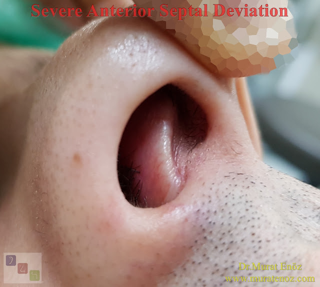 Severe anterior septal deviation - Anterior septal dislocation - Caudal septal deviation - Open technique septoplasty operation - Severe nasal septum deviation - Septoplasty in Istanbul