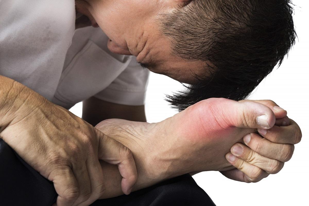 cara hilangkan gout