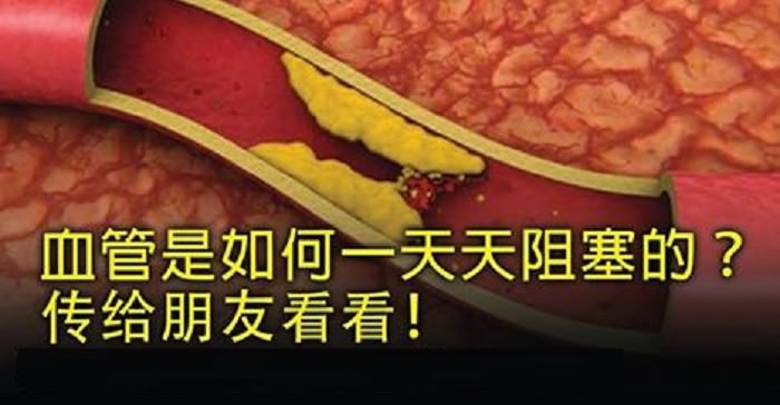 http://www.sharetify.com/2015/07/blog-post_34.html