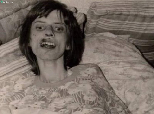 Hình ảnh gầy gò, ốm yếu của Anneliese vào những ngày cuối cùng của cuộc đời