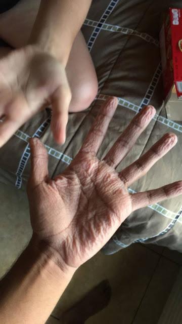 Jari-jari Pruney Yang Tidak Normal