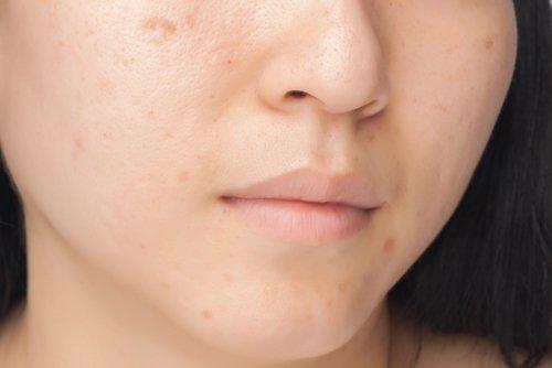 Masques pour de débarrasser des taches sur le visage