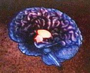 Beyin Sapının Devamı