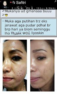 Testimoni Liyoskin Cream Terbaru