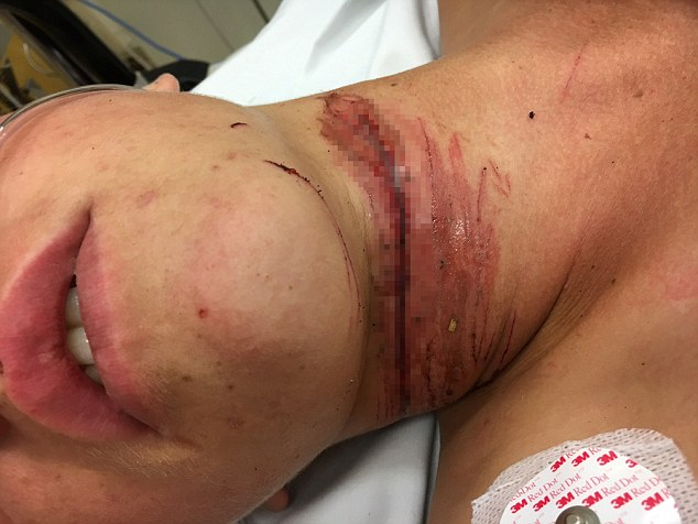 Teenage Boy Almost Loses His Head After Headphone Cord Slices Into His Neck!