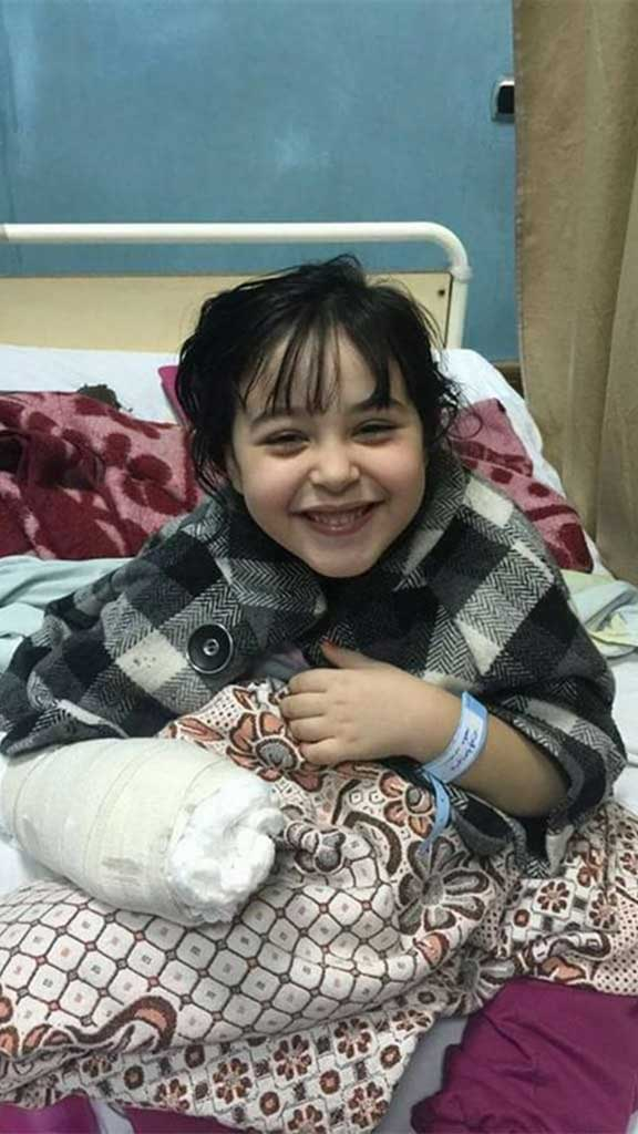 نشر رواد مواقع التواصل الإجتماعي صور قرد يلتهم يد طفلة في حديقة الزيتون