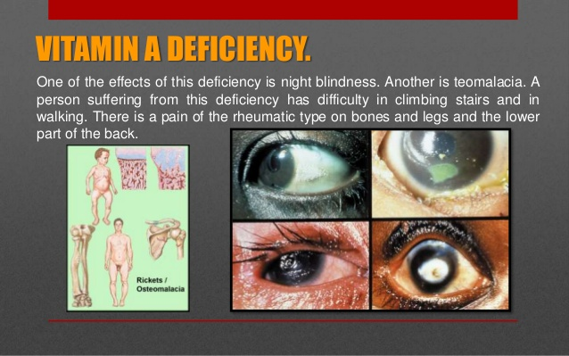 Vitamin A Benefits, Deficiency, Foods Sources ~ Health Tips