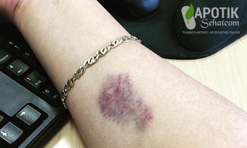 Penyebab dan Cara Pencegahan Lupus