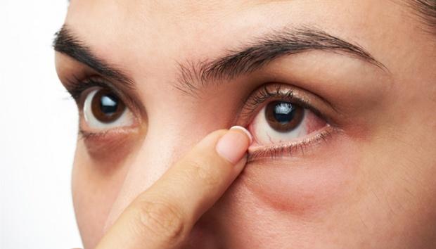 Cara Mengobati Mata Belekan Secara Tradisional
