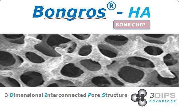 Daewoong Pharma Philippines Products Bongros Ha Bone