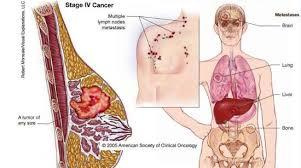 Faktor Risiko Terserang Kanker Payudara