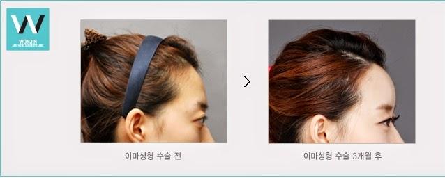 foto sebelum dan sesudah operasi plastik dahi di Operasi Plastik Wonjin