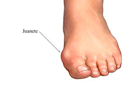 Definición Juanete