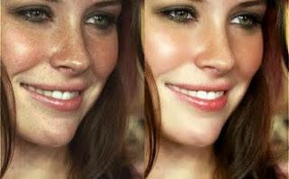 Hyperpigmentation : Remèdes maison pour traiter le mélasma naturellement