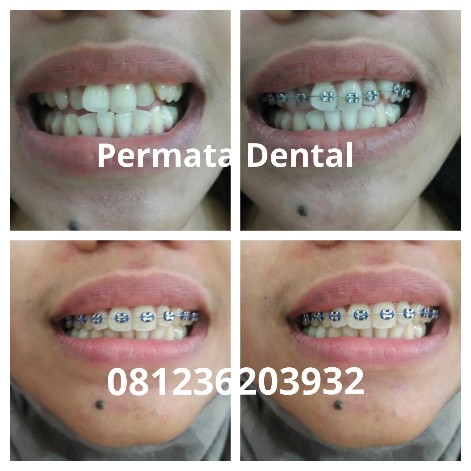 Behel Gigi Best Buy Indonesia Orthodentic Retainer Teeth Trainer Alignment Merapikan Pasang Jember Banyuwangi Bondowoso