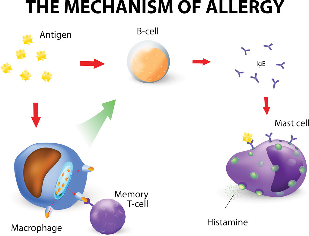 Histamine, Mast Cells, and Hay Fever Allergies