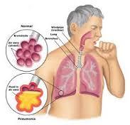 Cara Meredakan Batuk karena Bronkitis
