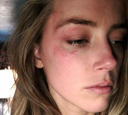 Amber Heard and Johnny Depp divorce bruised face violence
