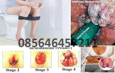 Harga Obat Wasir Herbal Ambejoss Tanpa Operasi