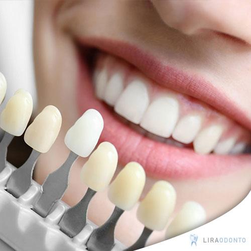 Facetas dentárias e lentes de contato dental são capas feitas em resina ou  porcelana que recobrem a parte da frente dos dentes. Elas se diferenciam  pela ... 3151af68c8