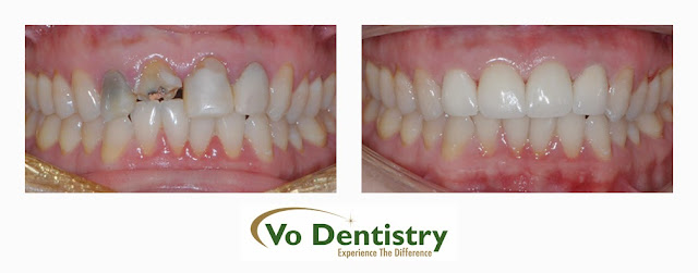 Ceramic crowns, no metal crown, Cosmetic Dentistry, Lawrenceville, Norcross, Lilburn, Dacula, buford, duluth, snellville, hamilton mill, grayson, sugar hill, sugar loaf, GA, Georgia
