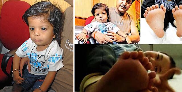 Image result for keajaiban bayi dilahirkan dengan 36 jari kaki dan tangan