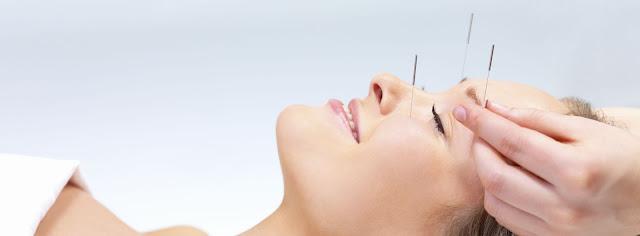 Acupuncture Woodbridge VA