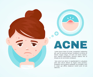 The Lost Secret of 7 Best Ways to Get Rid of Body Acne
