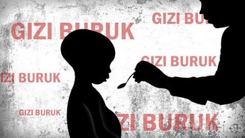 Mengatasi Kesenjangan Gizi Anak Indonesia Bersama Pendekar Anak