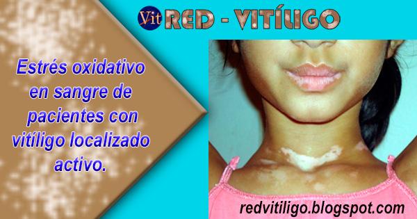Estrés oxidativo en sangre de pacientes con vitiligo localizado activo.