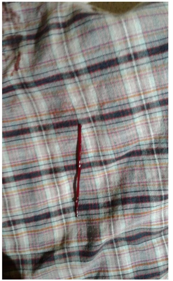 True Life Story - Blood Comes Out Of My Private Part At Night, Lady Cries Out