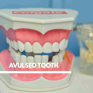 Avulsed tooth