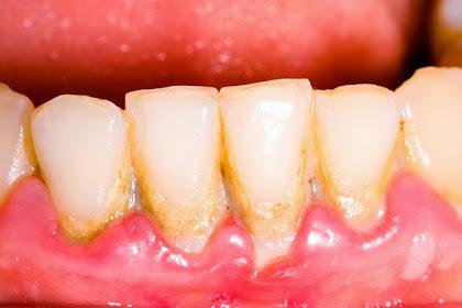 Cara Mencegah Karang gigi dan Menghilangkannya jika sudah terlanjur
