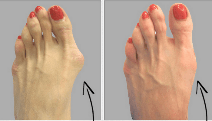 Get-Rid-Of-Bunions-naturally