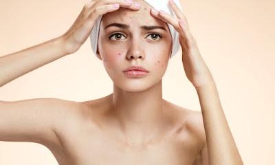 Cara menangkal dan menanggulangi kulit berjerawat
