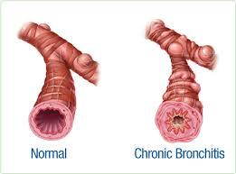 Cara Alami Menyembuhkan Bronkitis Kronis