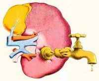 Insuficiencia renal o fallo de los riñones, una enfermedad de difícil diagnóstico