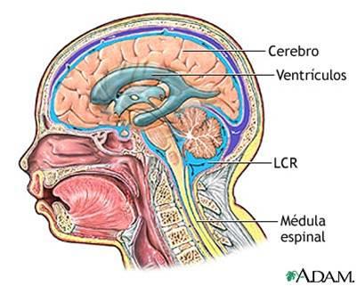 el líquido cefalorraquídeo espinal espontáneo pierde los síntomas de la diabetes