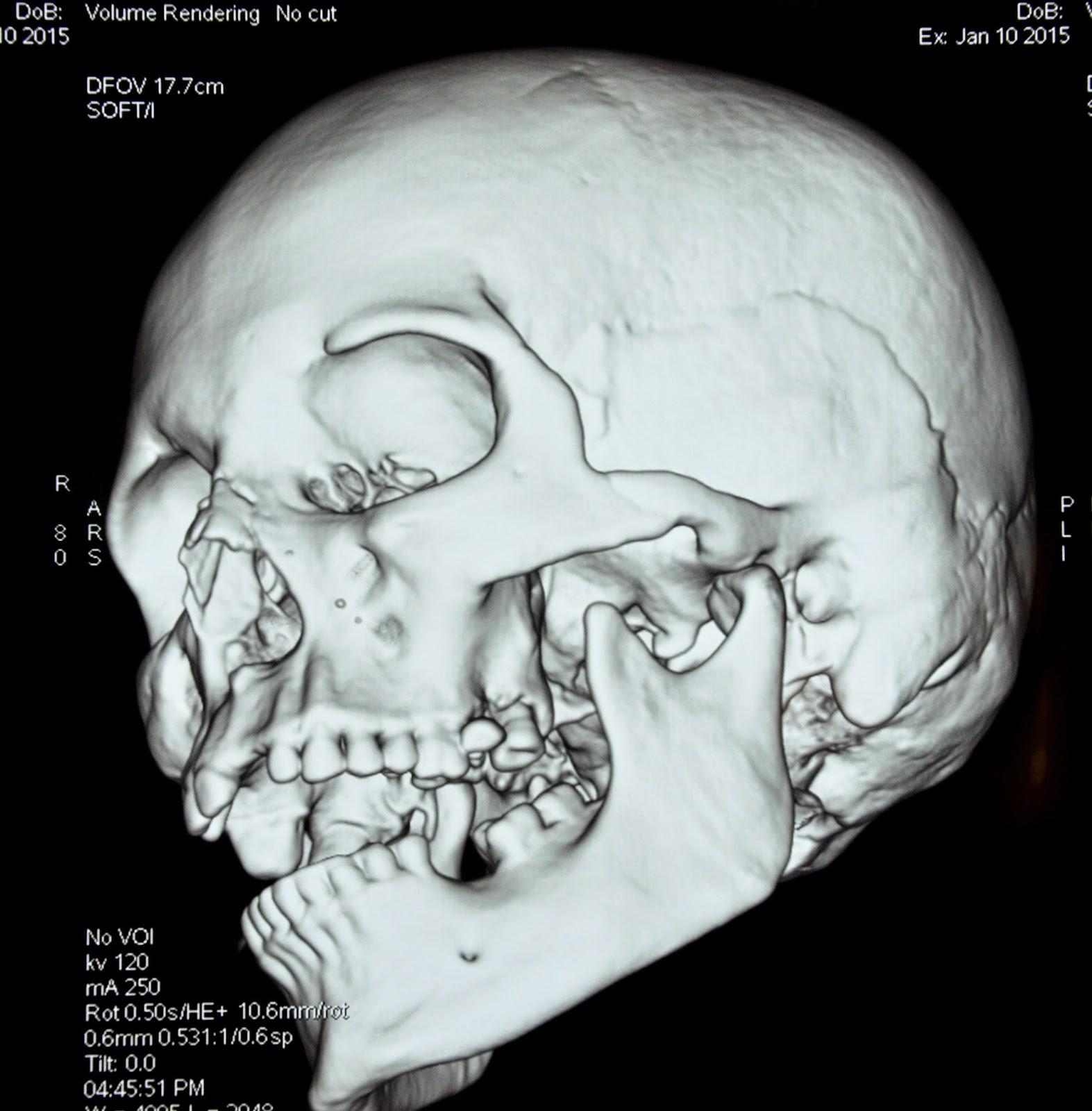Wifes black bone facial fracture cute fuck nude