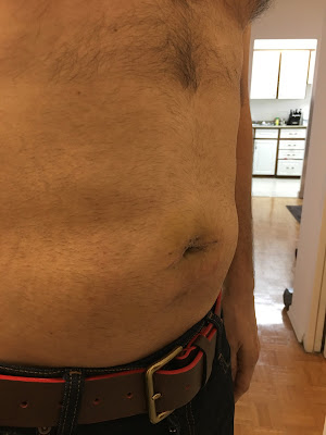Two weeks after hernia repair at Shouldice  - right angle