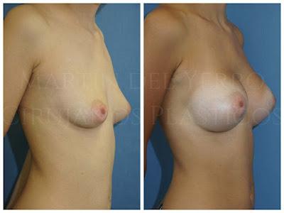 Pechos tuberosos antes y después