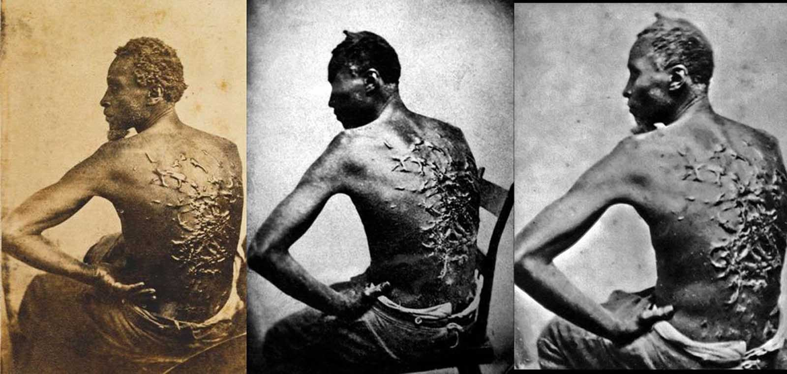 Three different photographs of Peter, a slave from Baton Rouge, Louisiana, ca. 1863. The scars are a result of a whipping by his overseer Artayou Carrier, who was subsequently fired by the master. It took two months to recover from the beating. These photographs were widely distributed in the North during the war. Also called