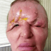 Plastic surgery fails as woman's face melts after fillers