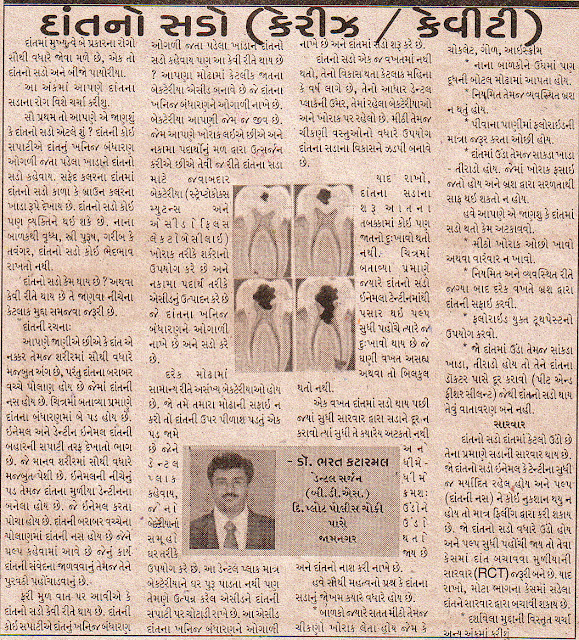 article publised in aajkal daily of jamnagar on dental caries/cavity for public dental health education by Dr. Bharat Katarmal, dental surgeon of Jamnagar
