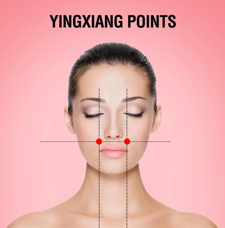 yingxiang point treatment headache