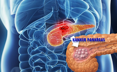 7 Tanda Kanker Pankreas yang Wajib Anda Waspadai