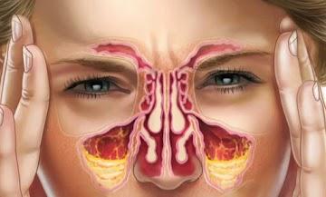 Como se livrar naturalmente da infecção da sinusite