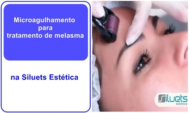 Microagulhamento para tratamento de melasma na Siluets Estética
